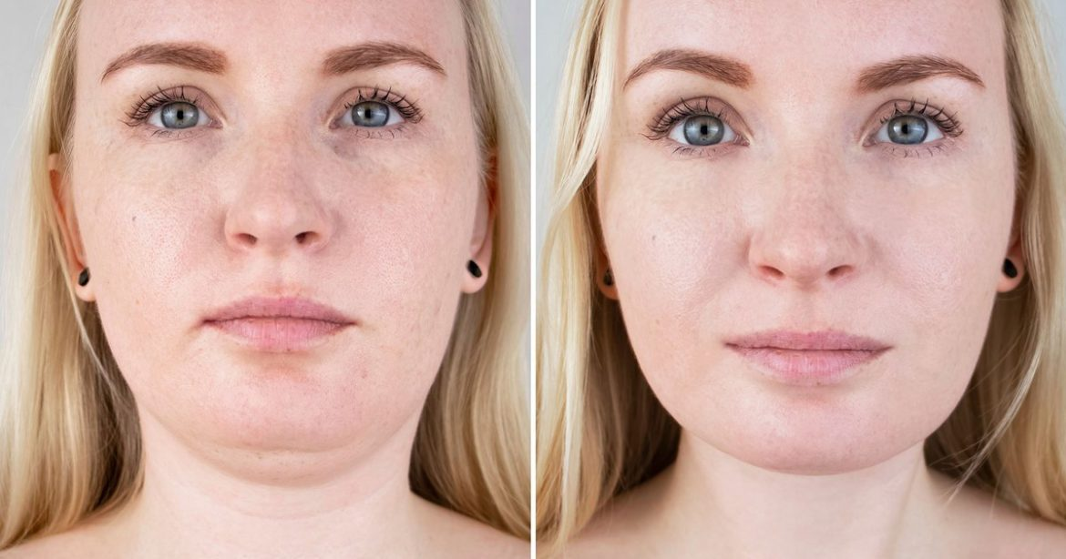 This Retinol & Collagen Lifting Cream Might Present Leads to Simply 15 Days