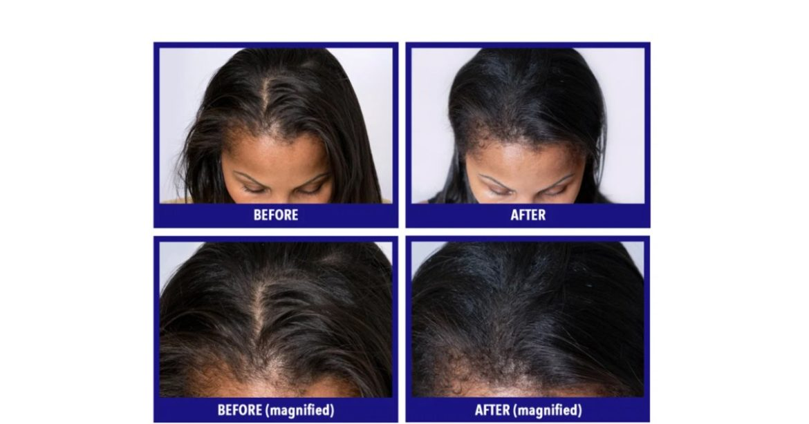 Discover Out What Units This Hair Loss Vitamin Aside From the Relaxation